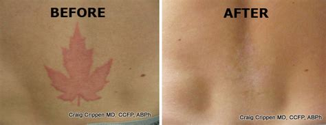 tattoo removal with salt before and after saline removal before and after