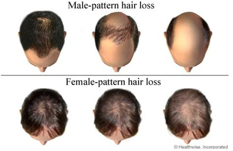 Pattern Of Hair Loss | tips of frontal hair loss treatment perfect hair guide