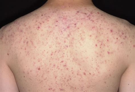 pimples on back bad gross outs for boy s locker room in pictures