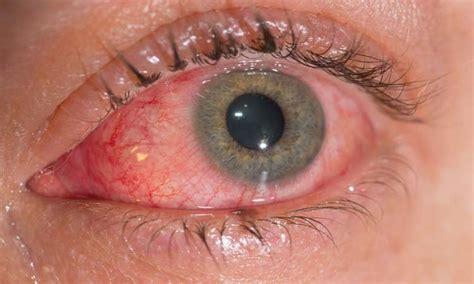 imagenes ojos con conjuntivitis conjuntivitis al 201 rgica causas s 237 ntomas y tratamiento