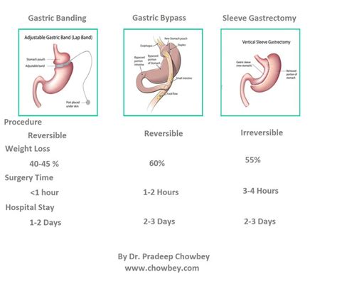 Diet Exercise Or Surgery by 1000 Images About Bariatric Obesity Surgery On