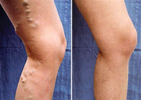 vene varicose interne patologie venose cura