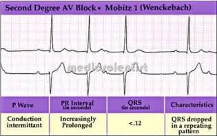 Degree av block second degree av block mobitz type i mobitz type