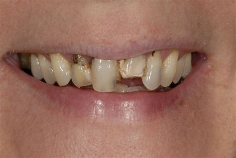 rotten teeth can you healthy gums and rotten teeth julie m gillis dds
