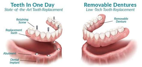 dentures in a day one day dentures related keywords one day dentures