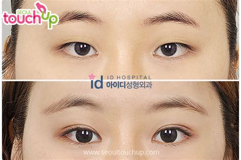double eyelid double eyelid surgery in korea seoul touchup