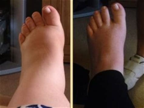 feet swelling after c section legs swollen after c section 28 images tummy tuck