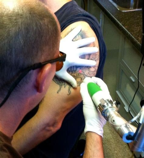 tattoo removal cost nj 23 best removal cost images on