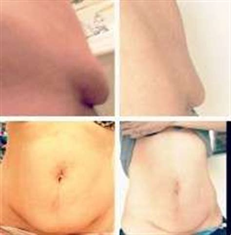 C Section Tummy Tuck 187 Tummy Tuck Information Prices