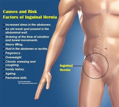 inguinal herniatypescausessymptomstreatmentprevention
