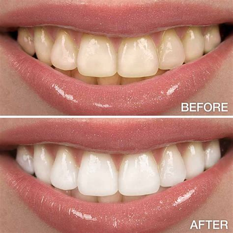 teeth whitening canal view dental surgery rathmines dublin