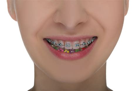 braces colors the gallery for gt braces color selector