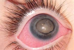 most uncommon eye color pin eye color on