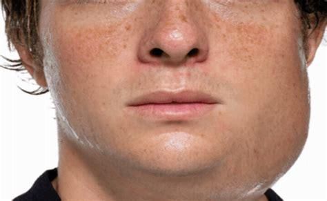 CDC reports most mumps cases in a decade | WGNO Mumps Cdc