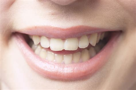how to repair chipped front teeth healthfully