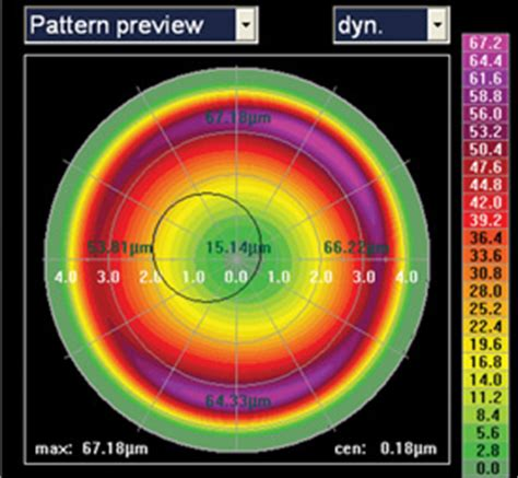 topography guided ablation pros  cons