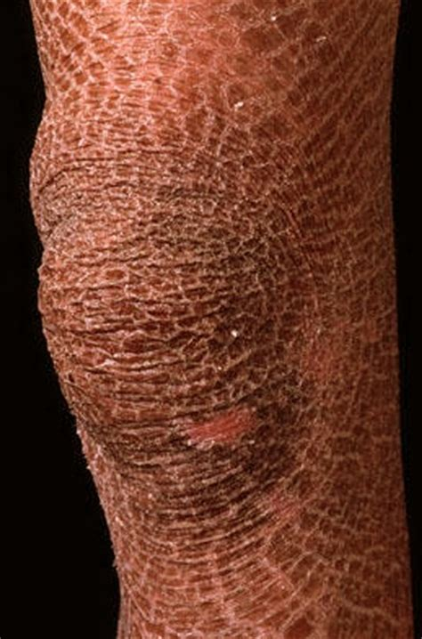 L Picture That Looks Like Legs by Ichthyosis Pictures Symptoms Causes And Treatment