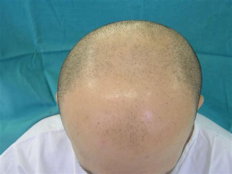 bandage hair shaped pattern baldness ارتباط ریزش مو با صبحانه مطالب جالب در سایت هلمو