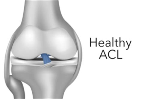 torn acl heal on its own what is an acl anterior cruciate ligament acl surgery