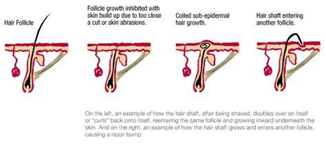 how to avoid bumps when plucking pubic hairs 美高梅网址 官网