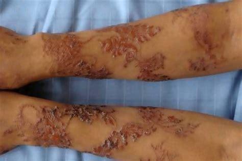 Harmful Effects Of Red Black Mehandi Virtual Black Henna Removal 2