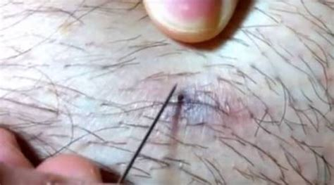 ingrown hair cyst removal infected ingrown hair cyst treatment hairsstyles co