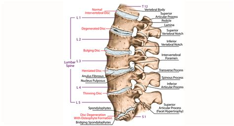 inversion table cervical disc herniation herniated disc runner s guide to diagnosis treatment
