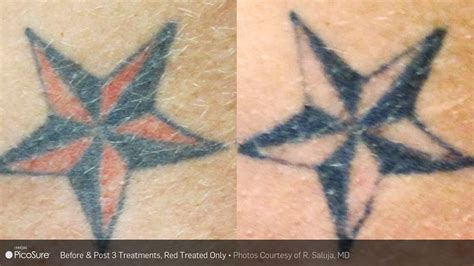 Tattoo Removal Ogden Utah | laser tattoo removal timeless medical spa ogden ut