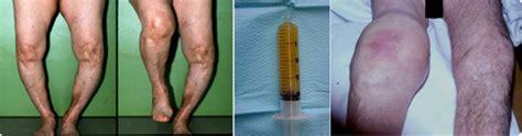 condropatia femoro tibiale interna douleur genou interne carabiens le forum