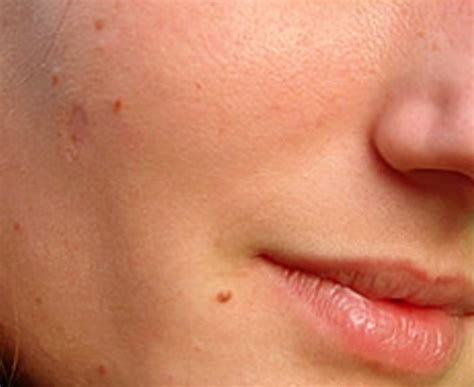 skin tags skin tags pictures
