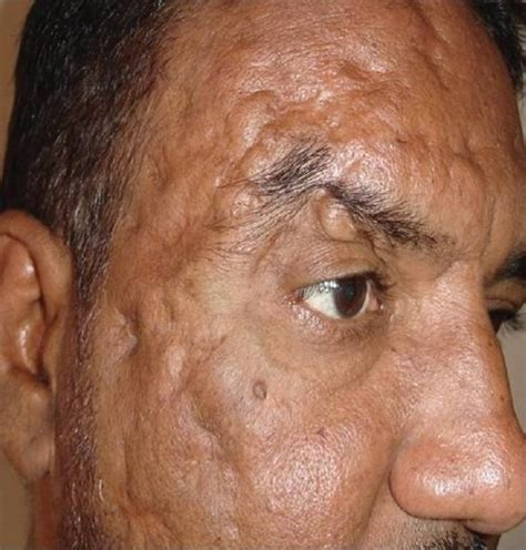 Lateral View Of Face Showing Healed Puckered Deep Scars