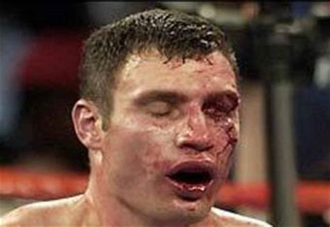 klitschko brothers who is better klitschko brothers who would win a fight between wladimir