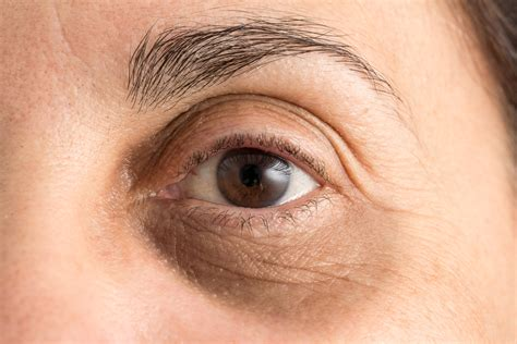 4 Things That Cause Your Eye Circles And Puffiness by Derms Their Best Non Invasive Treatments For