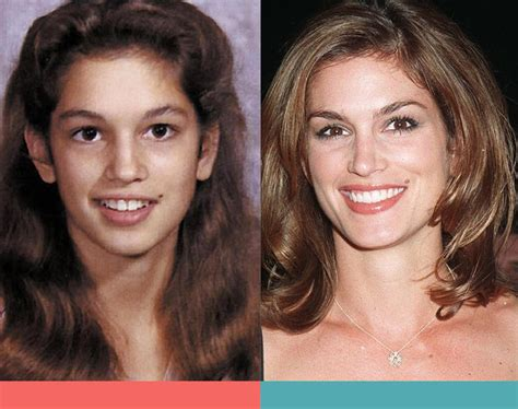 invisalign commercial actress celebrities with braces before and after australian