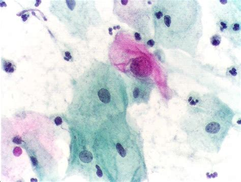 papanicolaou test file pap test abnormal jpg