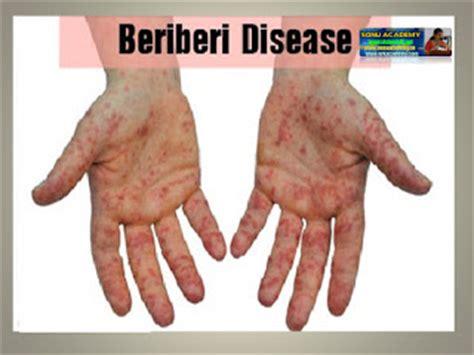 carbohydrates deficiency sonu academy deficiency diseases text
