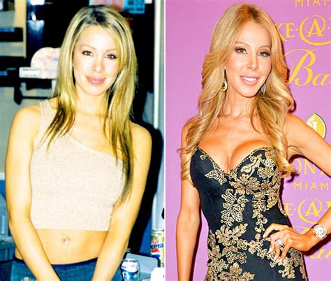 Lisa Hochstein Do Before She Married   lisa hochstein plastic surgery before and after breast