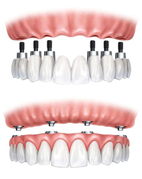 prezzo protesi dentaria mobile protesi semifissa con bottoni in croazia dentista