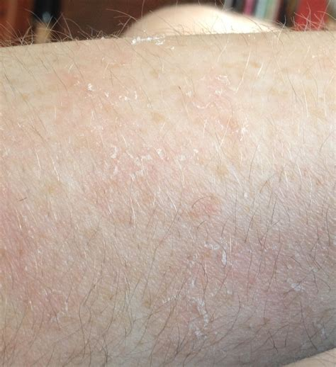 when a tiny patch of scaly skin is the first sign of small round patch of dry skin on arm architectgala