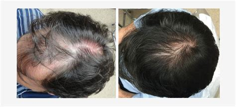 latest news and research on hair loss histogen signs deal for commercialization of hsc in china