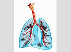Smokers lungs Clipart and Stock Illustrations. 429 smokers ... Lungs After Smoking Clip Art