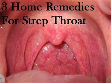 185 best images about health throat cough respiratory
