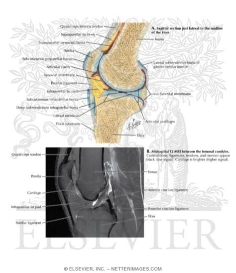 sectional view of the knee joint sagittal section of the knee joint and t2 mri