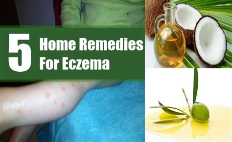5 home remedies for eczema treatments cure for