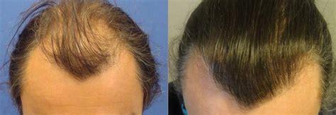 ovation hair reviews hair best hair loss treatment