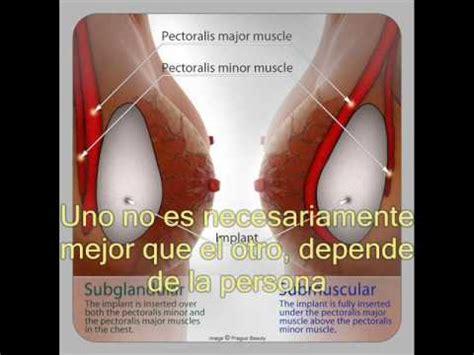 aumento de mamas aumento de mamas precios protesis de mama aumento de mama implante de silicona