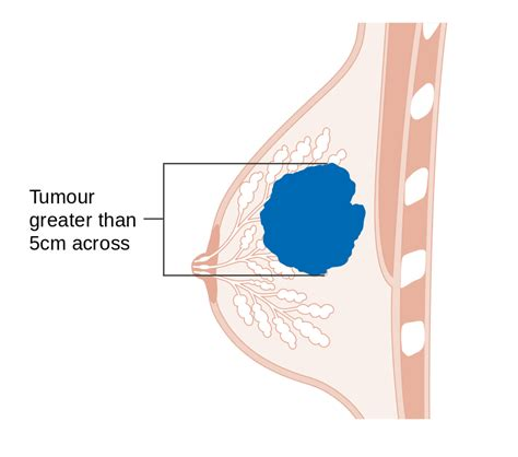 diagrams of breast cancer file diagram showing stage t3 breast cancer cruk 259 svg