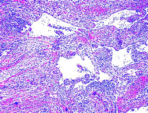 Lymphangioma Circumscriptum Pathology Outlines by Pathology Outlines Lymphangioma General