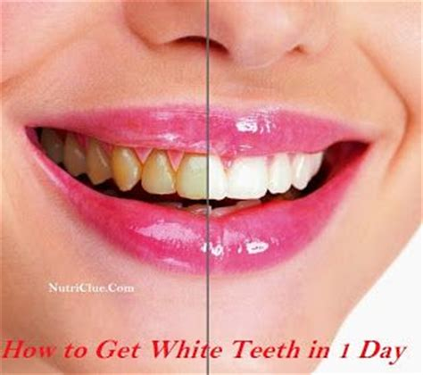 7 Reasons To Get Your Teeth Whitening Procedure Done By A Pro by Pin By Vern Riviere On Be A Better You