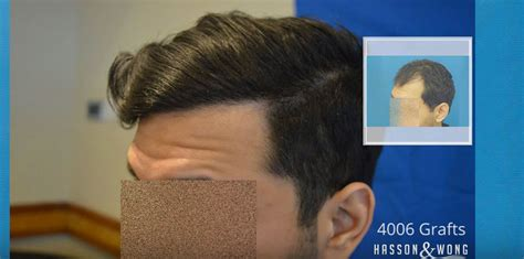 bosley non surgical options how is hair transplanted hairstylegalleries com
